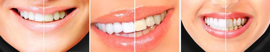 bright white تبييض الأسنان